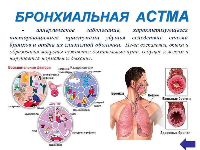 Профилактика бронхиальной астмы