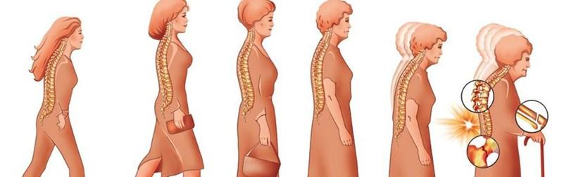 Мифы и реальность остеопороза