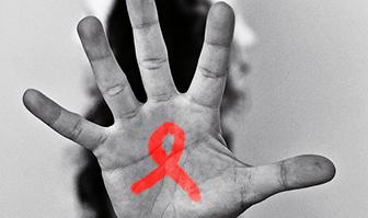 ВИЧ - инфекция.