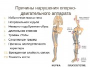 Профилактика заболеваний опорно - двигательного аппарата